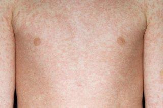 A former health boss has said measles jabs could be made 'mandatory'. Pic credit: NHS