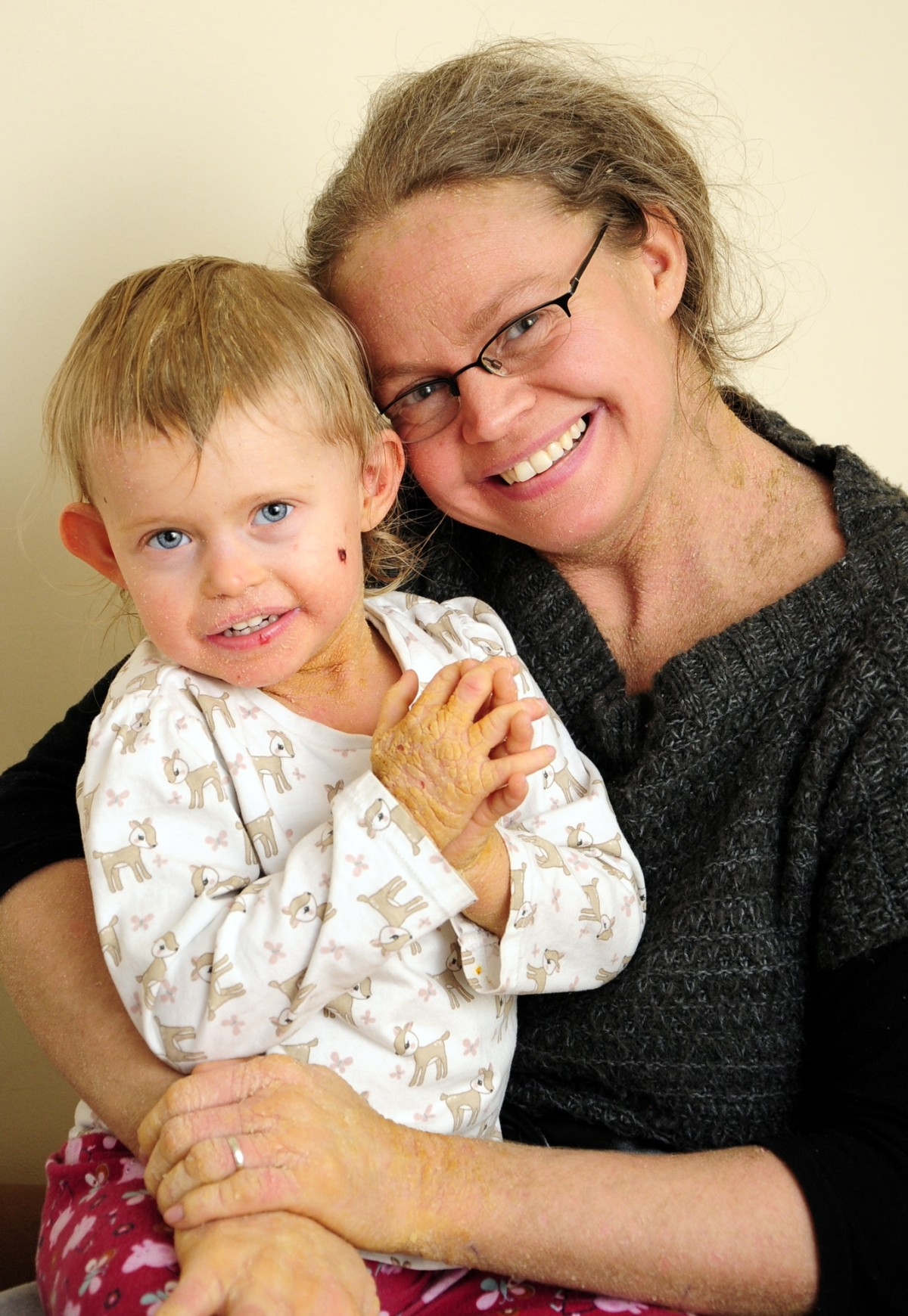 Atherton mum is spreading the word on rare skin condition
